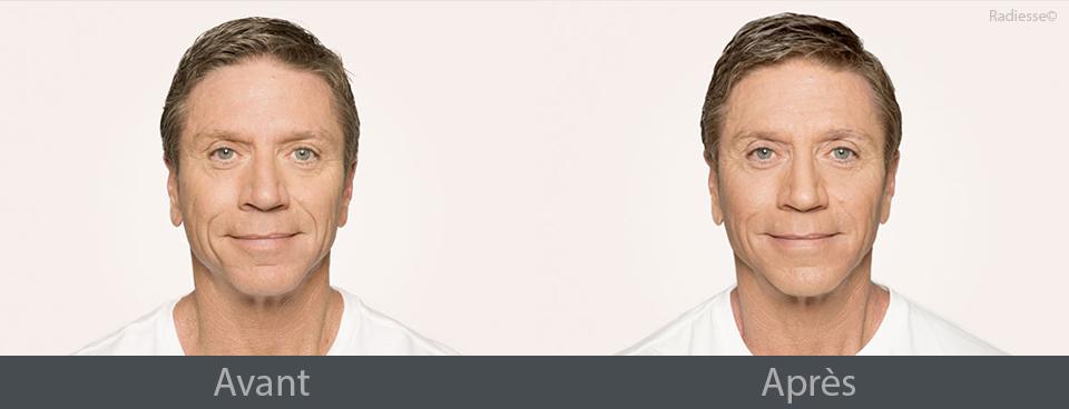 Exemples avant et après Radiesse
