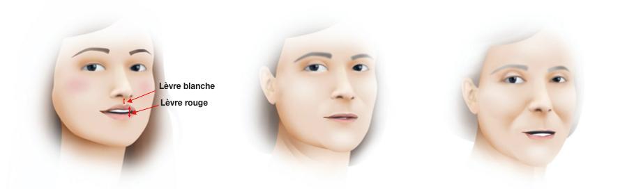 évolution de la lèvre supérieure avec l'age