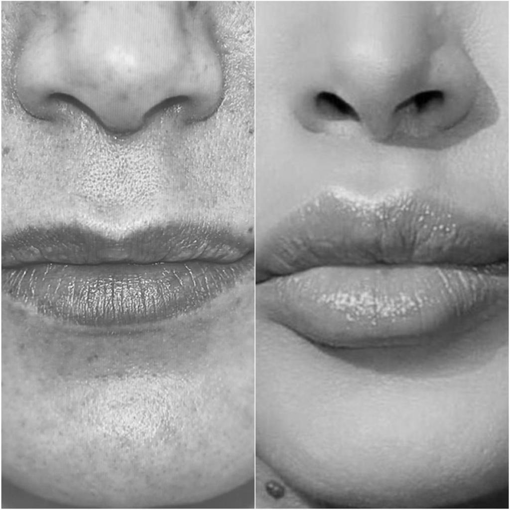 bouche femme repulpée