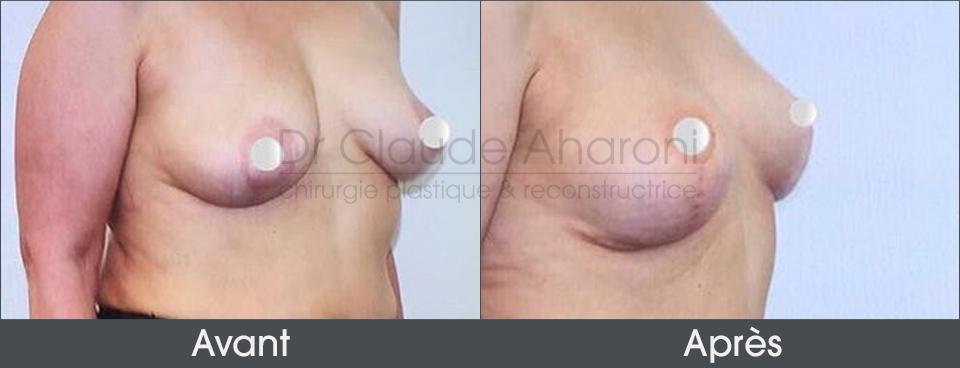 augmentation mammaire par prothèse femme